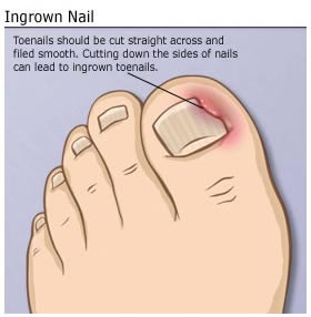 Treatment for ingrown toenail pain